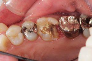 それでも、トラブルが起きたら~虫歯で穴が空いたら①~